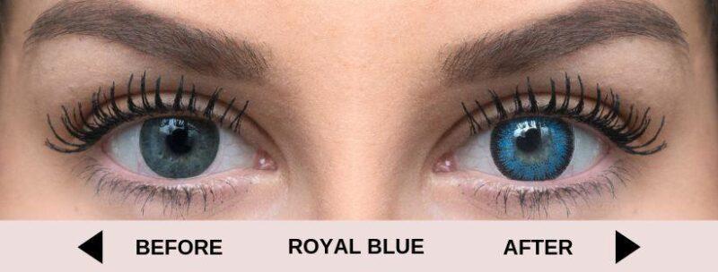 before royal blue light 5 | Elegant Optic