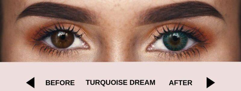 before turquoise dream dark 4 | Elegant Optic