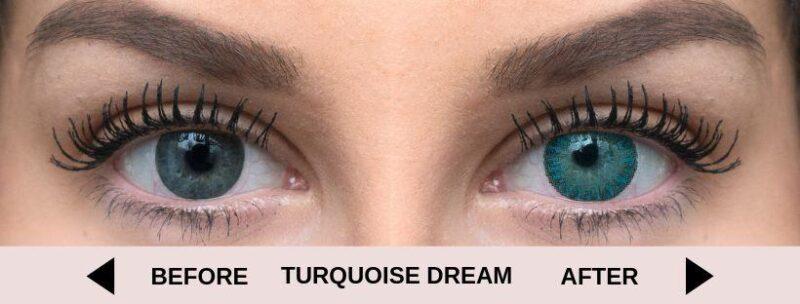 before turquoise dream light 5 | Elegant Optic